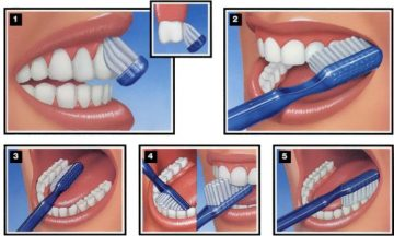 dental brushing
